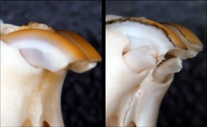 Benötigen Sie einen neuen Zahn? Medikament entdeckt, um verlorene Zähne zu regenerieren