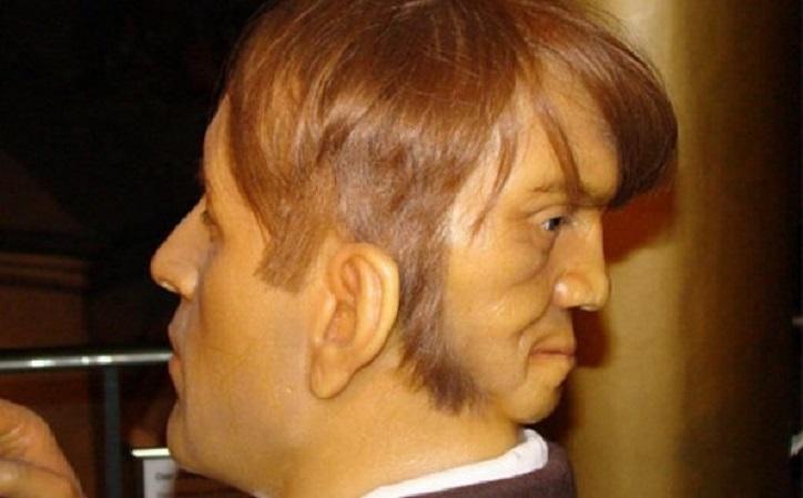 Edward Mordrake: Der Mann Mit Zwei Gesichtern